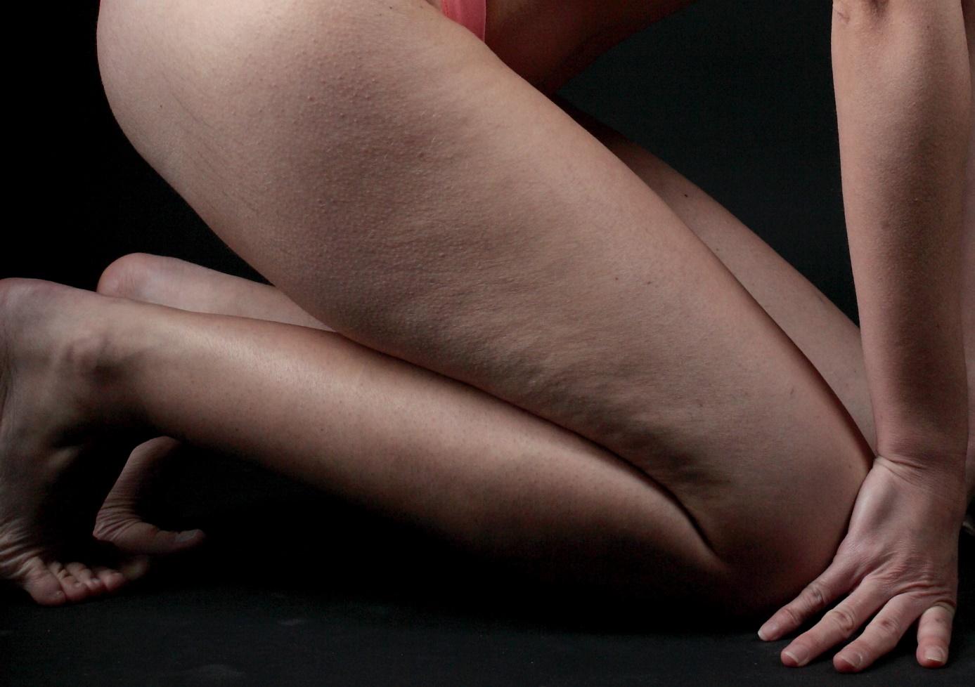 Remèdes contre la cellulite qui n'impliquent pas de chirurgie esthétique